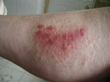 sub cindymatchette 2 rash The Best Contact Dermatitis Remedies On Hand