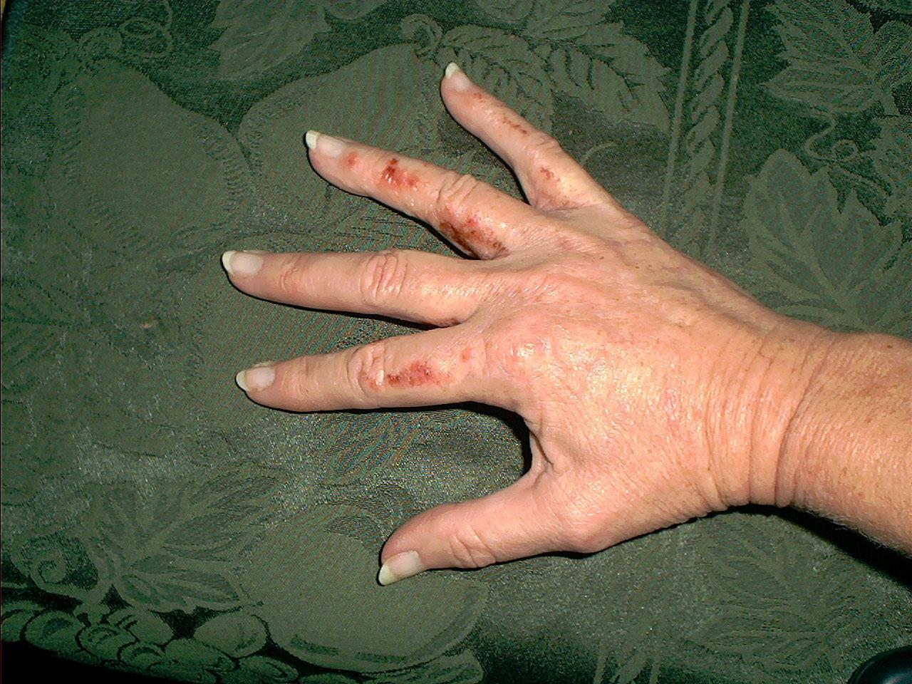 Poison Sumac On Hands